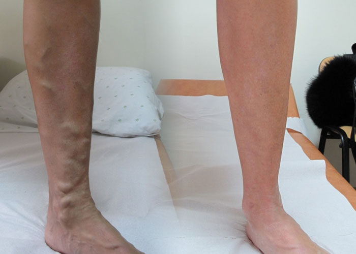 болят подушечки под пальцами ног лечение